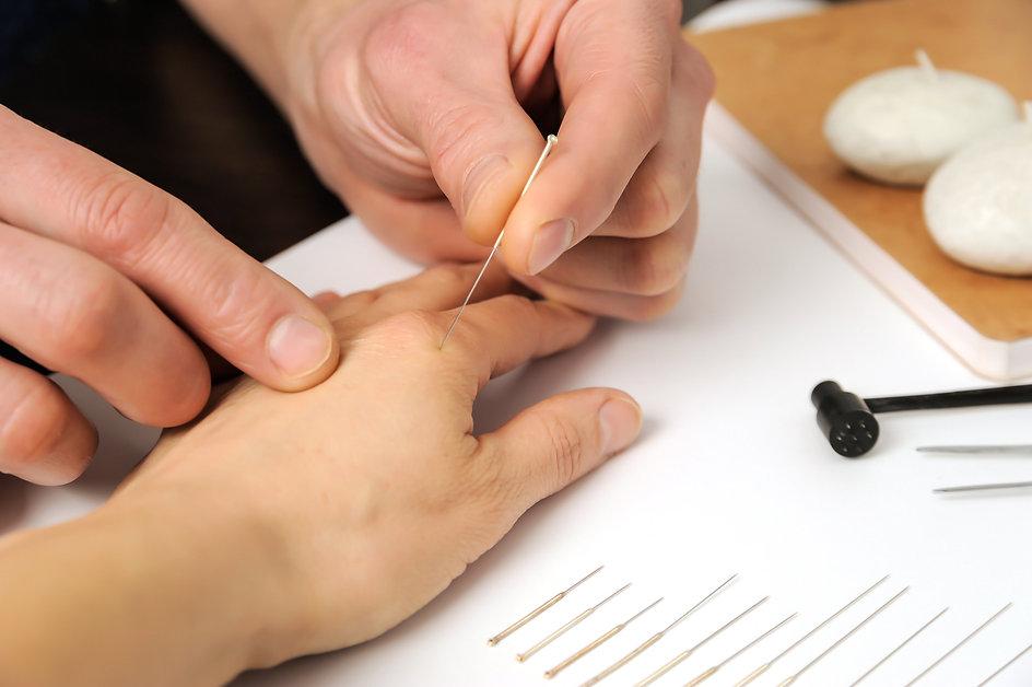 Formation d'initiation à l'Acupuncture Tung au Pôle de Thérapeutes.
