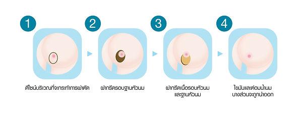 การลดขนาดหน้าอกโดยมีแผลรอบปานนม