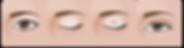 ศัลยกรรมตาแบบกรีดแผลสั้น