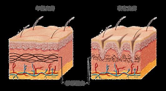 - 從HIFU,激光鐳射等抗衰老治療不同的是,不首先創傷性皮膚,不會修復的差異程度。 - 醫療級技術,能夠準確地把握神經細胞的老化,滲滿ATP能量的深度。 - 將水沖擊濃縮充滿真皮儲存空間,活得更健康的蛋白質,重建3D緊湊型材。 - 為肌膚充滿水份,肌膚即時柔順,細緻而飽滿。