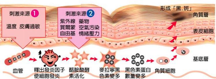 肌膚變得愈來愈薄,但角質層卻越變越厚,使肌膚既暗啞,又易敏感。 活躍的角質蛋白受紫外線,空氣污染及情緒等因素刺激,產生酪胺酸酵素。 隨著酪胺酸酵素活化而形成黑色素。 黑色素形成後,潛伏於角質層細胞,隨著角質層脫落,使自然黑色素浮於面層。