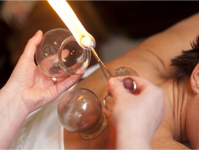 Cupping... What's The Buzz All About?