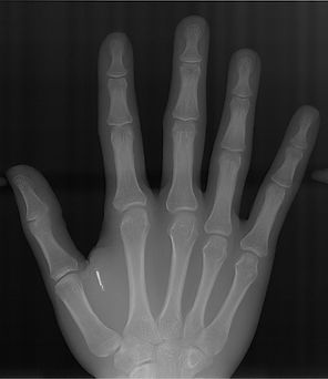 AHD Carpal X-Ray.jpg