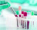 blood sample.png