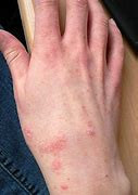 is herpes curable