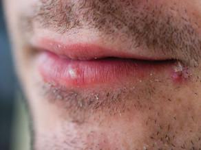 Herpes Symptoms Men | ForgetHerpes