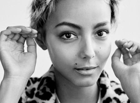 ¿Perder el pelo? 9 mujeres nos cuentan su experiencia