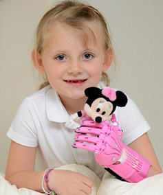 Heartwarming Stuff - from Invention and 3-D Printing!?!