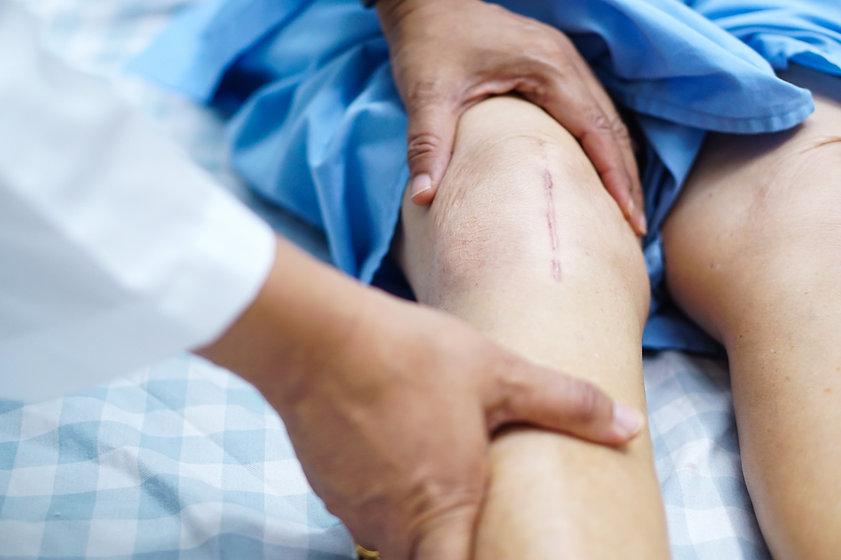 knee 1.jpg