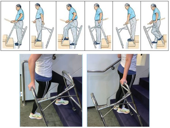 Stairs are difficult obstacles, requires additional aid  Walker aids climb but shaky and also becomes obstacle as legs can get caught on individual stairs.