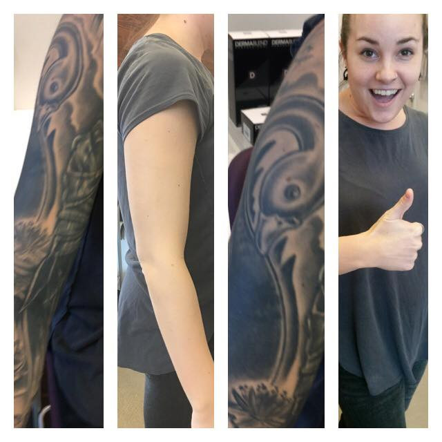 DermaBlend completely camouflaged Ashley's Tattoo!