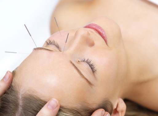 Facial Acupuncture - Not Just for Wrinkles