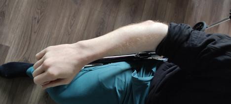 Charlie's fused elbows.