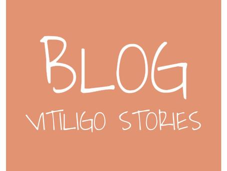 Dealing with Vitiligo at the Kindergarden