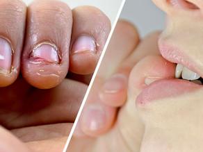 5 bekannte Nagelprobleme - Welche möchten Sie überwinden?
