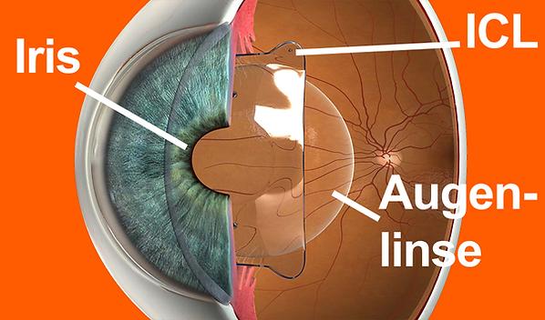 icl, implantierbare kontaktlinsen, sehen ohne brillge bis 50 jahre, patienten, vista alpina augenzentrum, visp, sierre, siders, wallis, oberwallis, dr. vandekerckhove, laserbehandlung, alternative, option