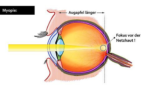 Kurzsichtigkeit, Vista Alpina Augenklinik Visp