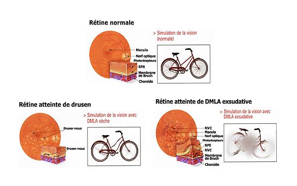 dégénérescence maculaire liée à l'âge, centre ophtalmologique vista alpina, viège, sierre, déficience visuelle grave