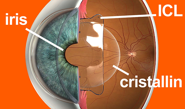 icl, lentilles de contact implantables, vision sans lunettes jusqu'à 50 ans, patients, centre ophtalmologique vista alpina, viège, sierre, valais, haut-valais, dr. vandekerckhove, traitement au laser, alternative, option