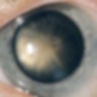 Grauer Star, Vista Alpina Augenklinik Visp