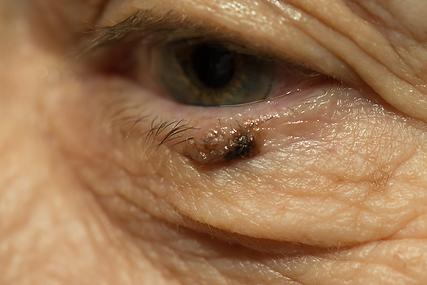 Lidtumor, Vista Alpina Augenzentrum