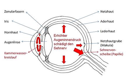 Grüner Star, Vista Alpina Augenzentrum
