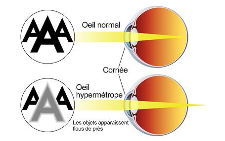 Hypermétropie, , Centre d'ophtalmologues Vista Alpina, Viège, Sierre, Valais