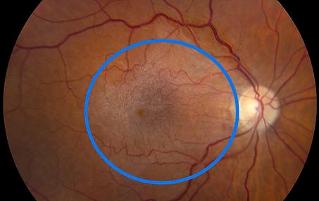 Gliose épirétienne, trous maculaires, Chirurgie de l'oeil, Centre d'ophtalmologues Vista Alpina, Viège, Sierre, Valais