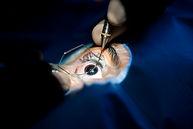 Cataracte, Chirurgie de l'oeil, Centre d'ophtalmologues Vista Alpina, Viège, Sierre, Valais