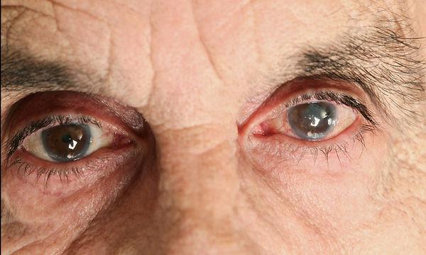 diagnostic, mesure de la pression oculaire, lampe à fente, glaucome, centre oculaire vista alpina dr. vandekerckhove, valais, haut valais, siders, sierre, visp, chirurgie oculaire