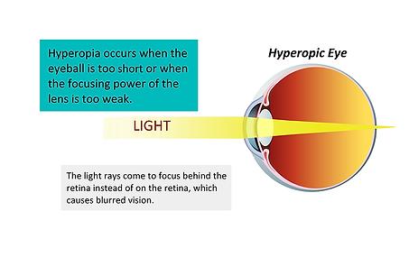 Hyperopic eye, Vista Alpina Eye Center Valais