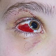 Notfall Sprechstunde, Vista Alpina Augenklinik