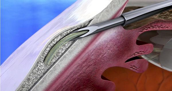 xen gel stent, glaucome, chirurgie, mini-invasive, alternative, viège, sierre, centre ophtalmologique vista alpina, valais, haut-valais, dr. vandekerckhove