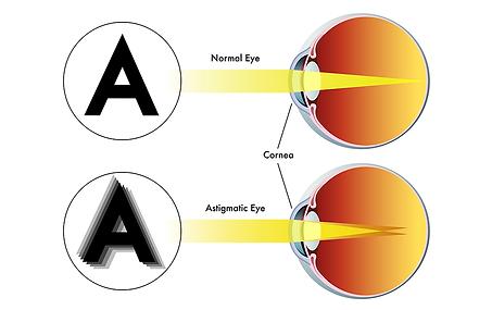 Astigmatic eye, Vista Alpina Eye Center Valais