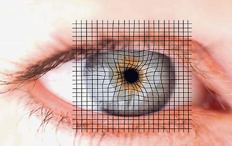 DMLA, thérapie intravitréenne, Centre d'ophtalmologues Vista Alpina, Viège, Sierre, Valais
