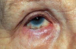 Entropion, Opérations de la paupière, Chirurgie de l'oeil, Centre d'ophtalmologues Vista Alpina, Viège, Sierre, Valais