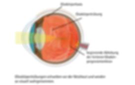 Glaskörpertrübung, Vista Alpina Augenzentrum