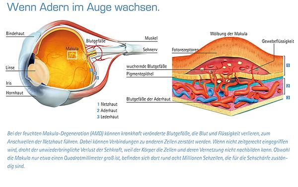 altersbedingte makuladegeneration, vista alpina augenzentrum, visp, sierre, schwere sehbehinderung