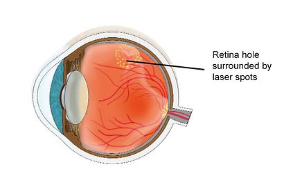 Retina hole, Vista Alpina Eye center Valais