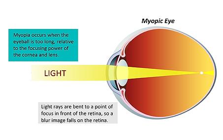 Myopic eye, Vista Alpina Eye Center Valais