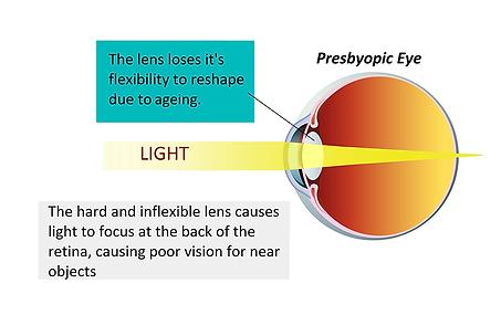 Presbyopic eye, Vista Alpina Eye Center Valais