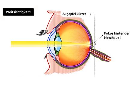 Weitsichtigkeit, Vista Alpina Augenklinik Visp