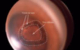 trou rétinien, Traitements au laser, Chirurgie de l'oeil, Centre d'ophtalmologues Vista Alpina, Viège, Sierre, Valais