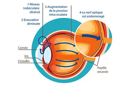 Glaucome, , Centre d'ophtalmologues Vista Alpina, Viège, Sierre, Valais