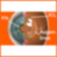 Implantierbare Kontaktlinse, Vista Alpina Augenzentrum, Augenarzt Wallis, ICL