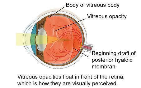 Vitreous opacity, Vista Alpina Eye Center Valais