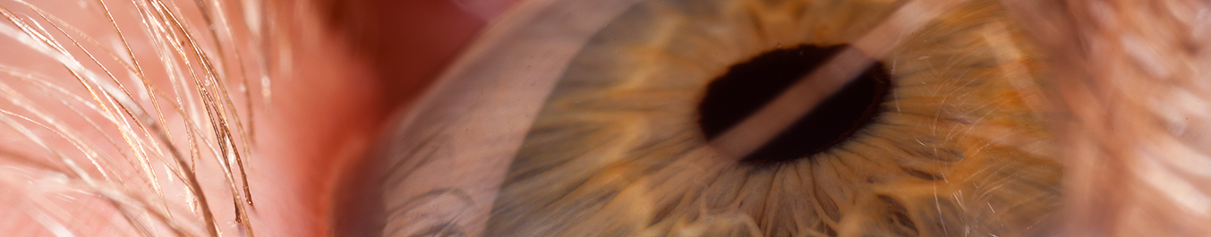 Chirurgie de la rétine, Chirurgie de l'oeil, Centre d'ophtalmologues Vista Alpina, Viège, Sierre, Valais