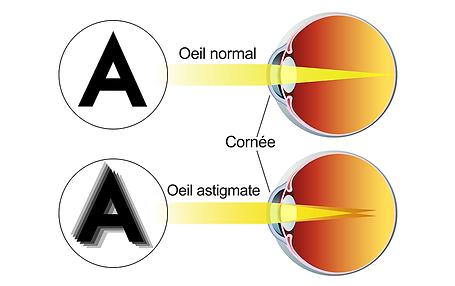 Astigmatisme, , Centre d'ophtalmologues Vista Alpina, Viège, Sierre, Valais