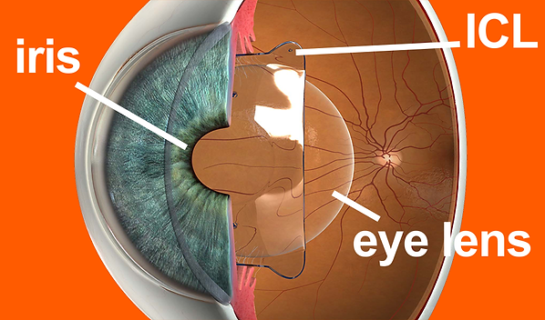 icl, implantable contact lenses, vision without glasses up to 50 years, patients, vista alpina eye centre, visp, sierre, siders, valais, upper valais, dr. vandekerckhove, laser treatment, alternative, option