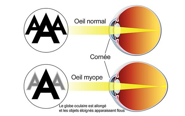 basse vision, myopie, myopie, rétine, forte réfraction, centre de l'œil vista alpina, visp, sierre, chirurgie de l'œil, ophtalmologue, voir sans lunettes, lentilles de contact implantables